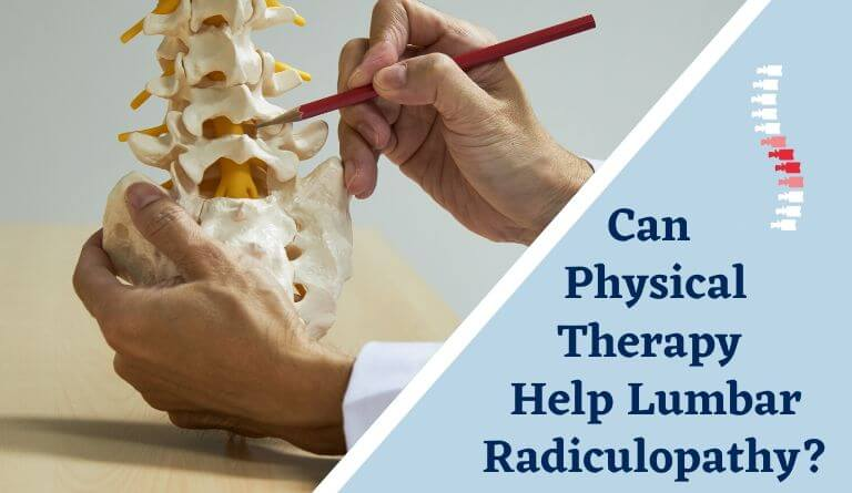 Can Physical Therapy Help Lumbar Radiculopathy